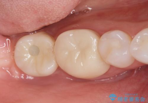 奥歯のインプラント治療の治療後