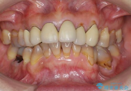[ メタルフリー治療 ]  金属のない口腔内にしたいの治療前