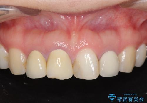 [根管治療・セラミッククラウン]  前歯の痛み・見た目を改善したいの症例 治療前