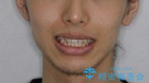 オーディションで歯並びを指摘された:自信をもって歌える口元への治療前(顔貌)