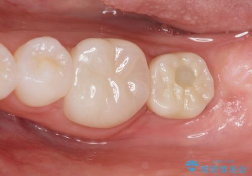 [ インプラント治療 ]  失った歯の咬合機能回復の治療後