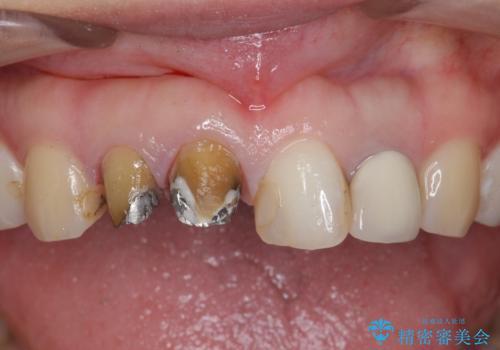 [根管治療・セラミッククラウン]  前歯の痛み・見た目を改善したいの治療中