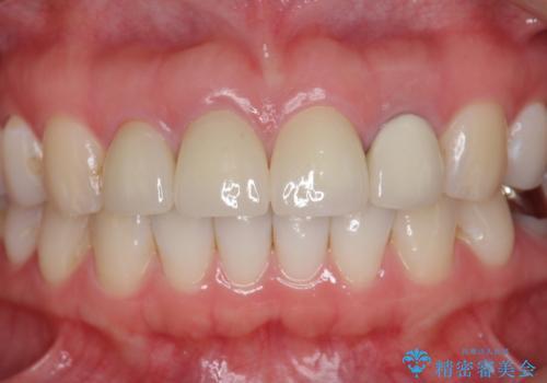 [根管治療・セラミッククラウン]  前歯の痛み・見た目を改善したいの治療後