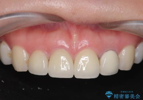 [根管治療・セラミッククラウン]  前歯の痛み・見た目を改善したいの症例 治療後