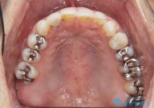 銀歯だらけの口の中を改善したいの症例 治療前