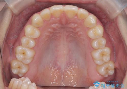 マウスピース矯正で前歯のガタつきを改善の治療後