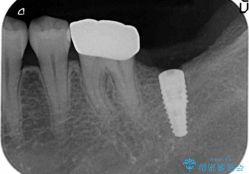 [ インプラント治療 ]  失った歯の咬合機能回復の治療中