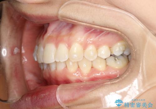 上の前歯が1本前に飛び出している インビザラインによる目立たない矯正の治療中