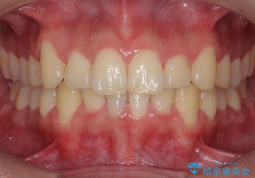 前歯のがたつき マウスピース矯正で 非抜歯で奥歯を後ろに下げる治療の症例 治療後