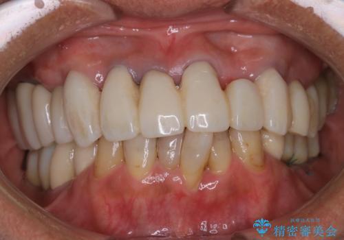治療中の仮歯もPMTCで白くきれいにの治療前
