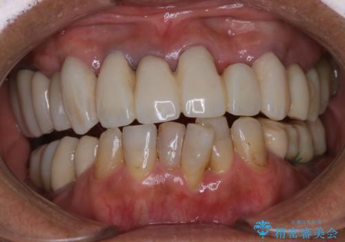 治療中の仮歯もPMTCで白くきれいにの症例 治療前