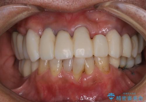 治療中の仮歯もPMTCで白くきれいにの治療後