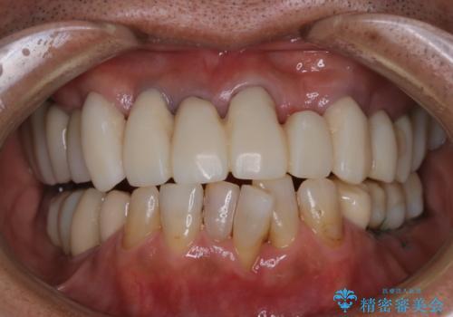 治療中の仮歯もPMTCで白くきれいにの症例 治療後