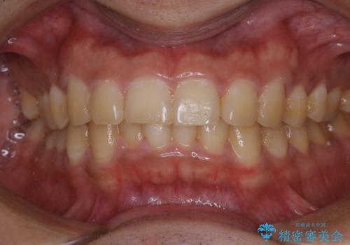 数年ぶりに歯のクリーニング(PMTC)の治療前