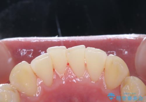 数年ぶりに歯のクリーニング(PMTC)の治療後