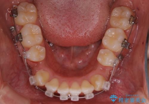 オーディションで歯並びを指摘された:自信をもって歌える口元への治療中