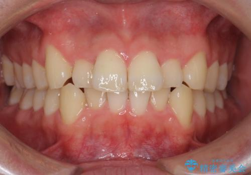 前歯のがたつき マウスピース矯正で 非抜歯で奥歯を後ろに下げる治療の症例 治療前