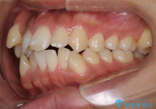 オーディションで歯並びを指摘された:自信をもって歌える口元への治療前