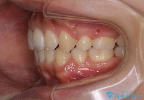 オーディションで歯並びを指摘された:自信をもって歌える口元への治療後