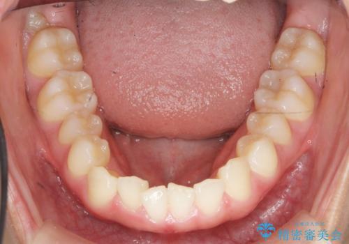 マウスピース矯正で前歯のガタつきを改善の治療前