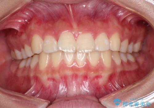 インビザラインによる出っ歯の非抜歯矯正の治療前