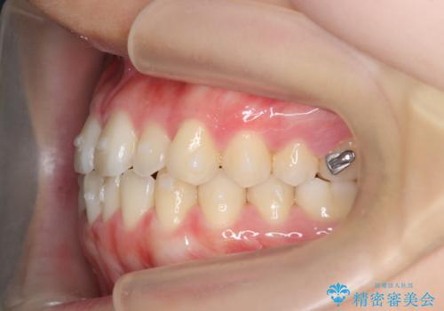 マウスピース矯正で前歯のガタつきを改善の治療中