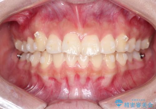 インビザラインによる出っ歯の非抜歯矯正の治療中