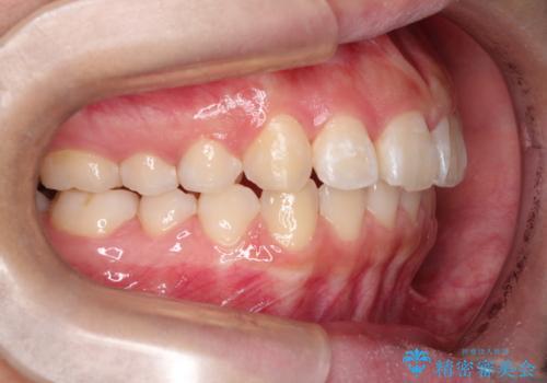 インビザラインによる出っ歯の非抜歯矯正の治療後