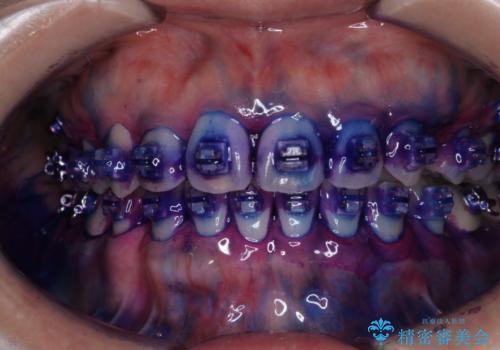 ワイヤー矯正中に歯の染め出しの治療前