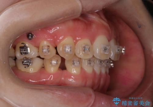 ワイヤー矯正中に歯の染め出しの治療後