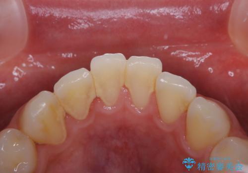 歯周病・虫歯・口臭などのトータルケア PMTCの症例 治療前