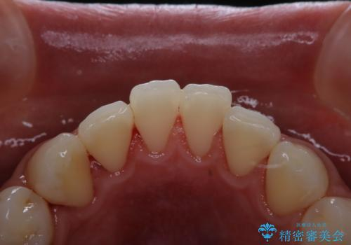 歯周病・虫歯・口臭などのトータルケア PMTCの症例 治療後