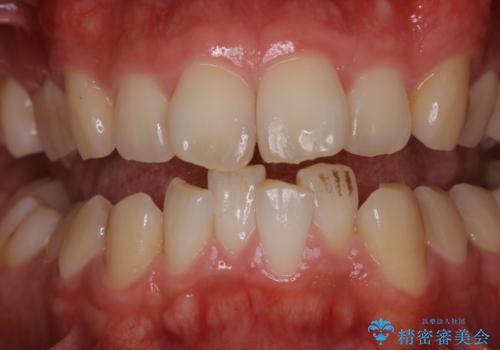虫歯ではなく、歯の着色の症例 治療前