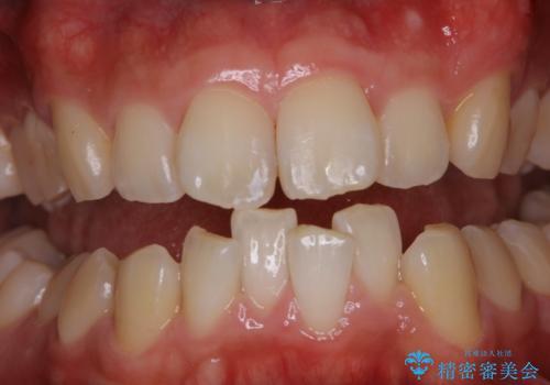 虫歯ではなく、歯の着色の症例 治療後