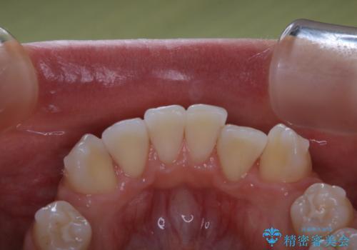 20代女性 インビザラインでのマウスピース矯正中にPMTCできれいな口元にの治療後