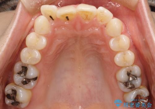 上の前歯が1本前に飛び出している インビザラインによる目立たない矯正の治療前