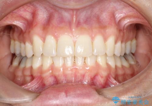 上の前歯が1本前に飛び出している インビザラインによる目立たない矯正の治療後