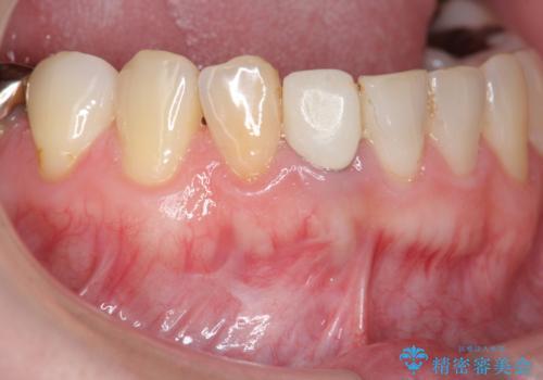 [ 歯ぐきを押すと痛む ] 根管治療の必要な前歯治療の治療前