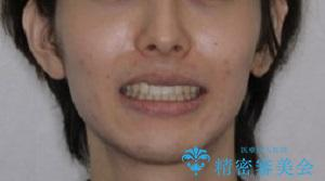 オーディションで歯並びを指摘された:自信をもって歌える口元への治療後(顔貌)