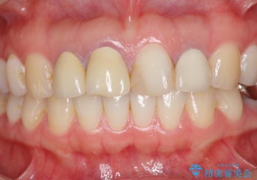 [根管治療・セラミッククラウン]  前歯の痛み・見た目を改善したいの治療前
